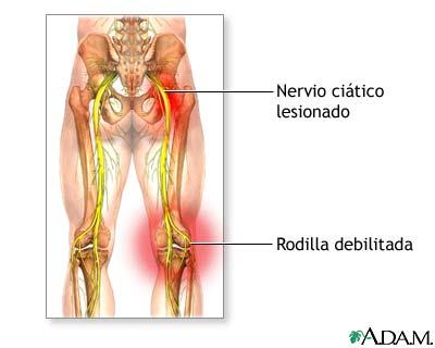 Daño al nervio ciático: MedlinePlus enciclopedia médica illustración