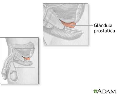 Glándula prostática