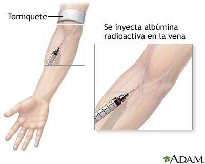 Inyección de albúmina