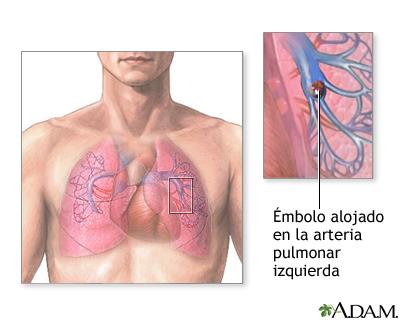 mbolo pulmonar