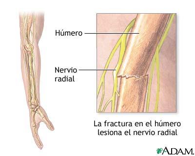 Disfunción del nervio radial