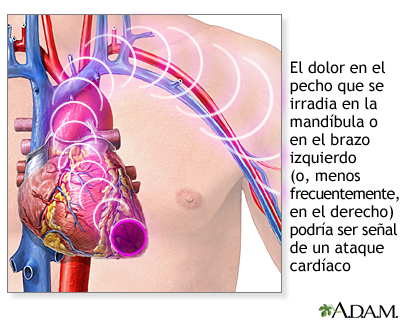 La hemorroide a la osteocondrosis del sacro