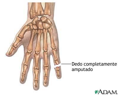 Dedo amputado