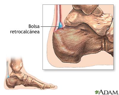 Bursitis retrocalcánea