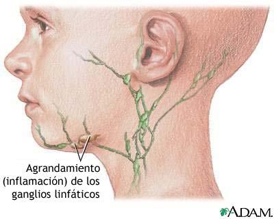 Nódulos linfáticos inflamados