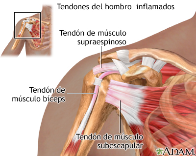 Tendones del hombro inflamados