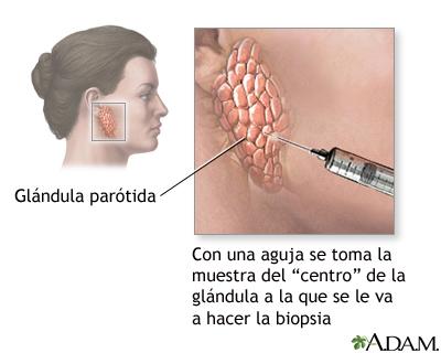 Biopsia de glándula salival