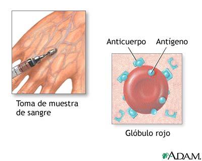 Biopsia de herpes
