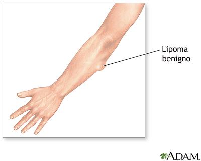 Protuberancias de la piel