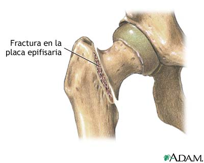 Fractura femoral