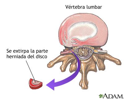 Reparación de un disco herniado
