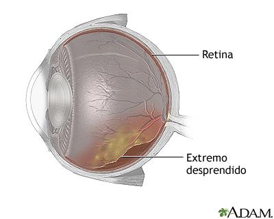 Retina desprendida