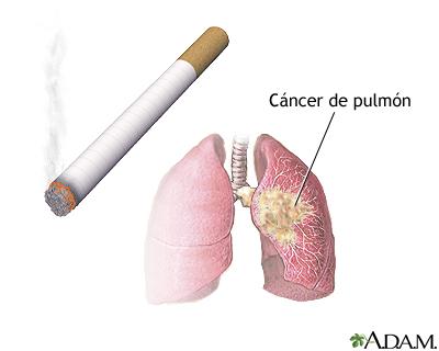 Riesgos del fumar