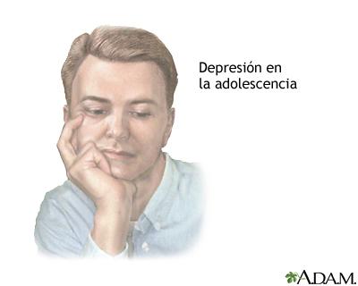 Depresión en el adolescente