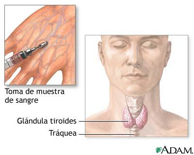 Examen de función tiroidea