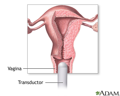 Ultrasonido transvaginal
