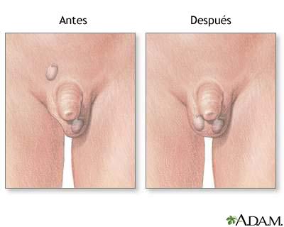 Antes y después de la reparación testicular
