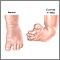 Reparación quirúrgica del pie zambo - Serie