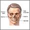 Reconstrucción cráneofacial - Serie