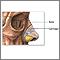 Cirugía plástica de la nariz (rinoplastia) - Serie