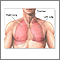 Lobectomía pulmonar - Serie