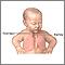 Reparación quirúrgica de una fístula traqueosofágica - Serie
