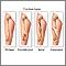 Tipos de fractura (1)