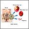 Trasplante de médula ósea - Serie