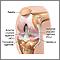 Artroscopia de rodilla - Serie