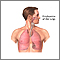 Trasplante de pulmón - Serie