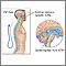 Esclerosis múltiple (diagnóstico) - Serie