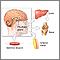 Prueba de estimulación de la hormona de crecimiento humano (GH) - Serie
