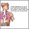 Aspergilosis pulmonar