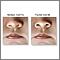 Dilatación de las fosas nasales