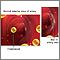 Desgarro arterial en la arteria carótida interna