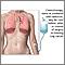 Tratamiento con quimioterapia para cáncer pulmonar