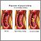 Acumulación progresiva de placa en arteria coronaria