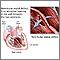 Defecto del tabique ventricular