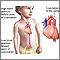 Coartación de la aorta