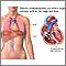Cardiomiopatía dilatada