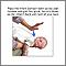 Maniobra de Heimlich en bebés