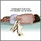 Punción lumbar (punción espinal)