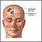 Fractura de cráneo