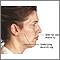 Cirugía estética facial - Serie