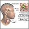 Relación cerebro-tiroides
