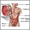 Enfermedad de Crohn; áreas afectadas