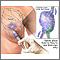 Biopsia de los ganglios centinelas