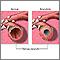 Bronquitis y condición normal de los bronquios terciarios