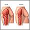 Músculo activo vs músculo inactivo