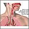Quemadura de las vías respiratorias